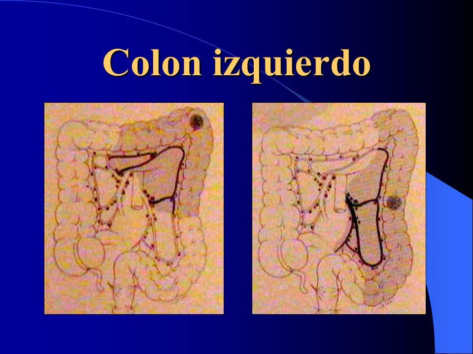 Colon izquierdo