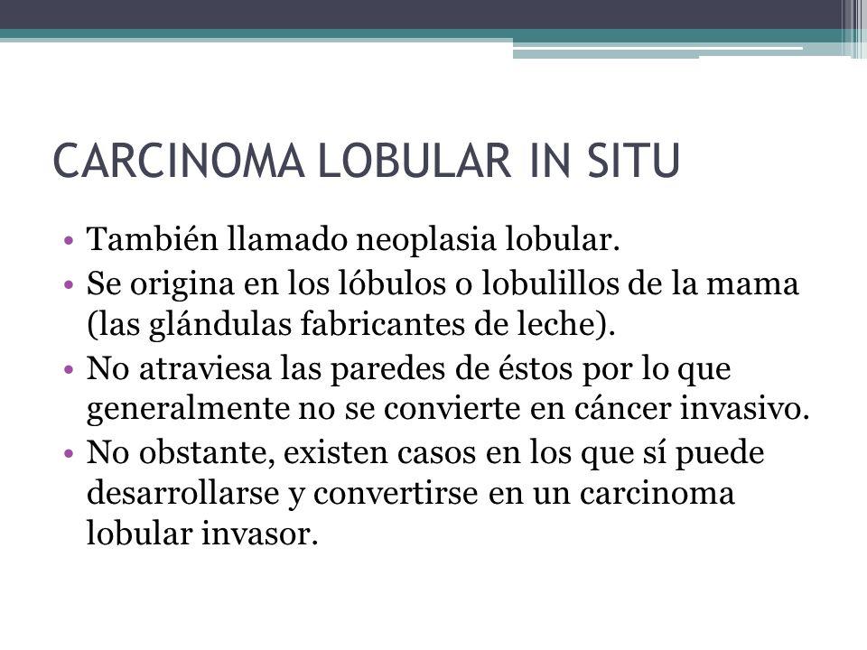 CARCINOMA LOBULAR IN SITU También llamado neoplasia lobular. Se origina en los lóbulos o lobulillos de la mama (las glándulas fabricantes de leche). N