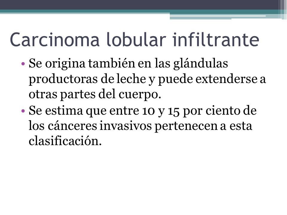 Carcinoma lobular infiltrante Se origina también en las glándulas productoras de leche y puede extenderse a otras partes del cuerpo. Se estima que ent