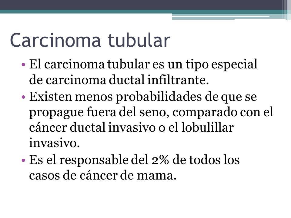 Carcinoma tubular El carcinoma tubular es un tipo especial de carcinoma ductal infiltrante. Existen menos probabilidades de que se propague fuera del