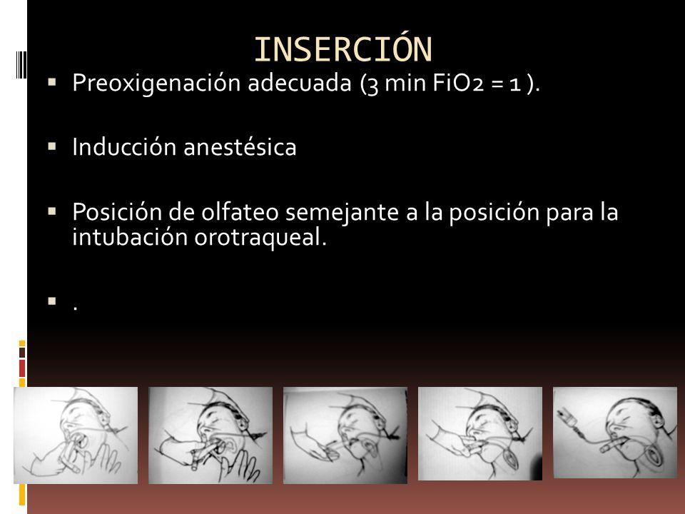 INSERCIÓN Preoxigenación adecuada (3 min FiO2 = 1 ). Inducción anestésica Posición de olfateo semejante a la posición para la intubación orotraqueal..