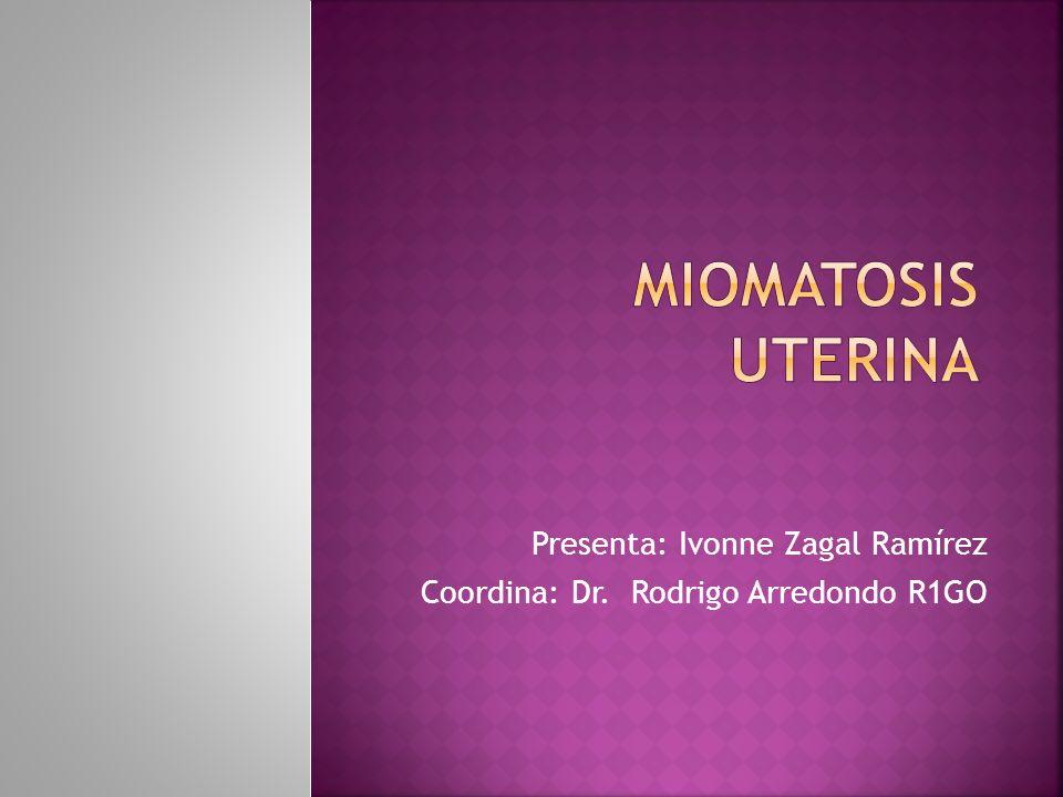 Presencia de glándulas y estroma endometrial dentro del miometrio.