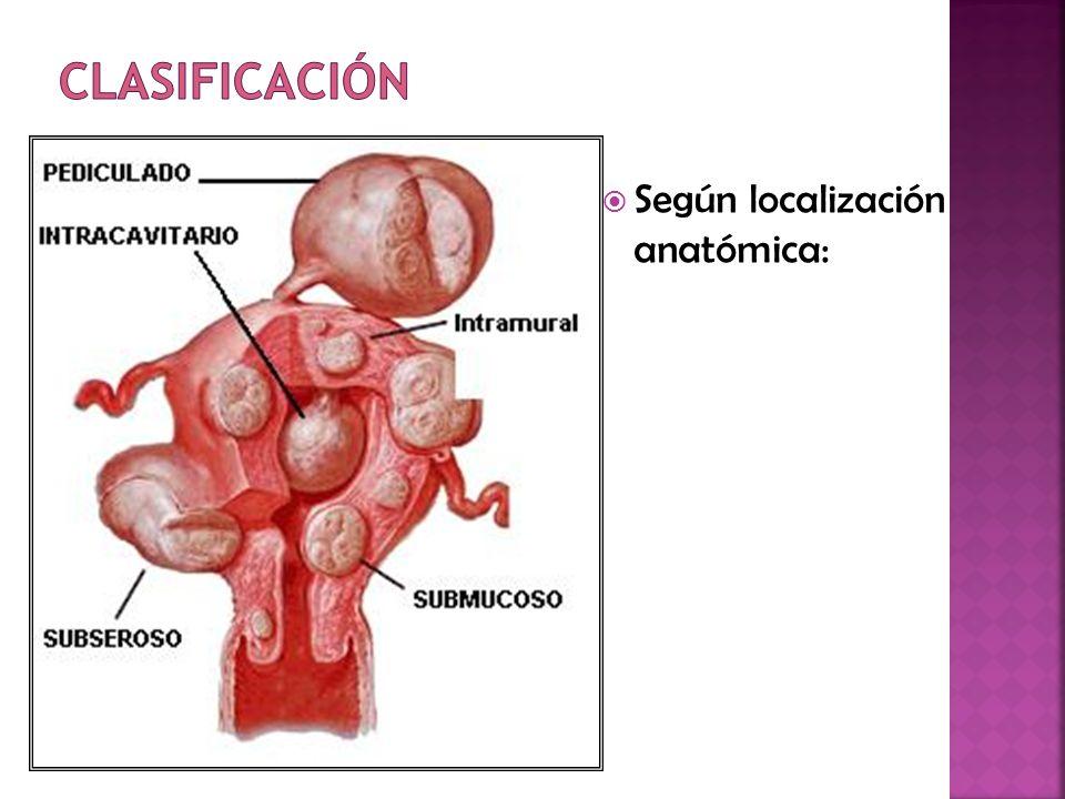 Según localización anatómica: