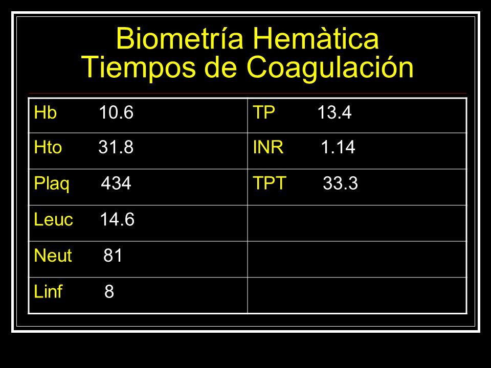 Biometría Hemàtica Tiempos de Coagulación Hb 10.6TP 13.4 Hto 31.8INR 1.14 Plaq 434TPT 33.3 Leuc 14.6 Neut 81 Linf 8