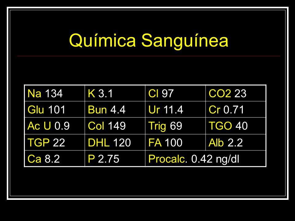 Química Sanguínea Na 134K 3.1Cl 97CO2 23 Glu 101Bun 4.4Ur 11.4Cr 0.71 Ac U 0.9Col 149Trig 69TGO 40 TGP 22DHL 120FA 100Alb 2.2 Ca 8.2P 2.75Procalc. 0.4