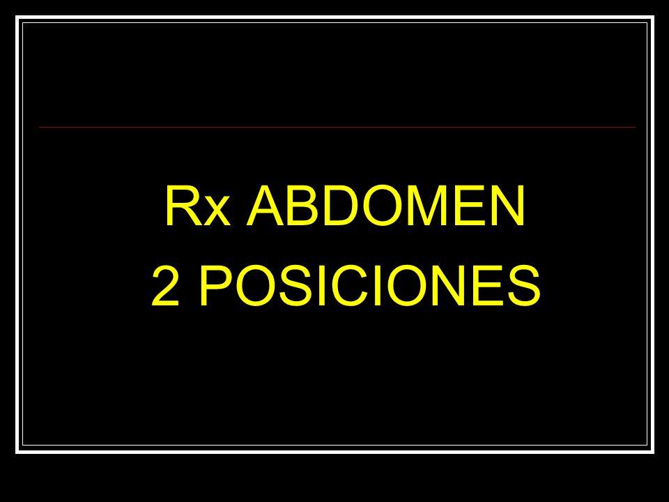 Rx ABDOMEN 2 POSICIONES