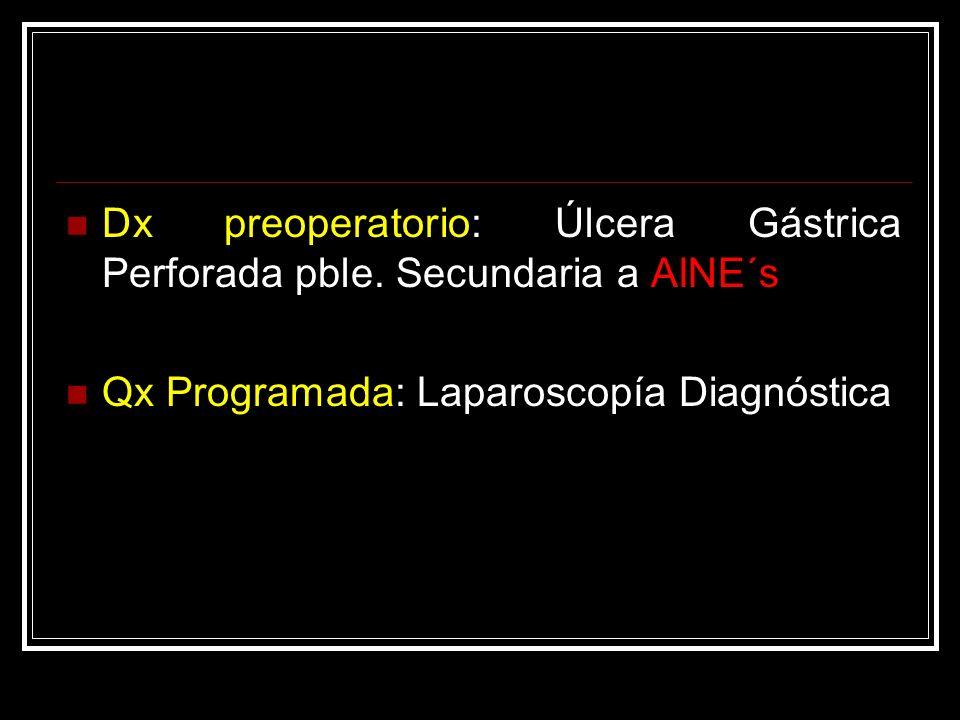 Dx preoperatorio: Úlcera Gástrica Perforada pble. Secundaria a AINE´s Qx Programada: Laparoscopía Diagnóstica