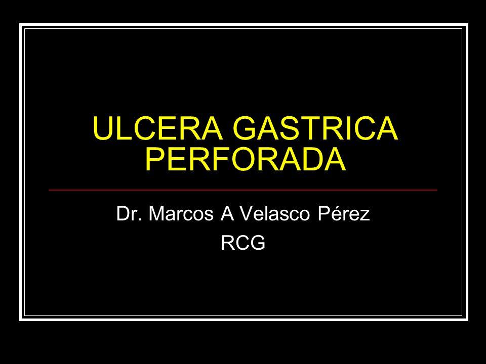 ULCERA GASTRICA PERFORADA Dr. Marcos A Velasco Pérez RCG