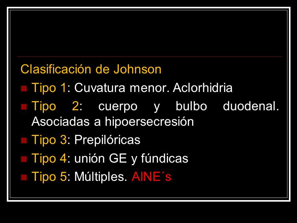 Clasificación de Johnson Tipo 1: Cuvatura menor. Aclorhidria Tipo 2: cuerpo y bulbo duodenal. Asociadas a hipoersecresión Tipo 3: Prepilóricas Tipo 4: