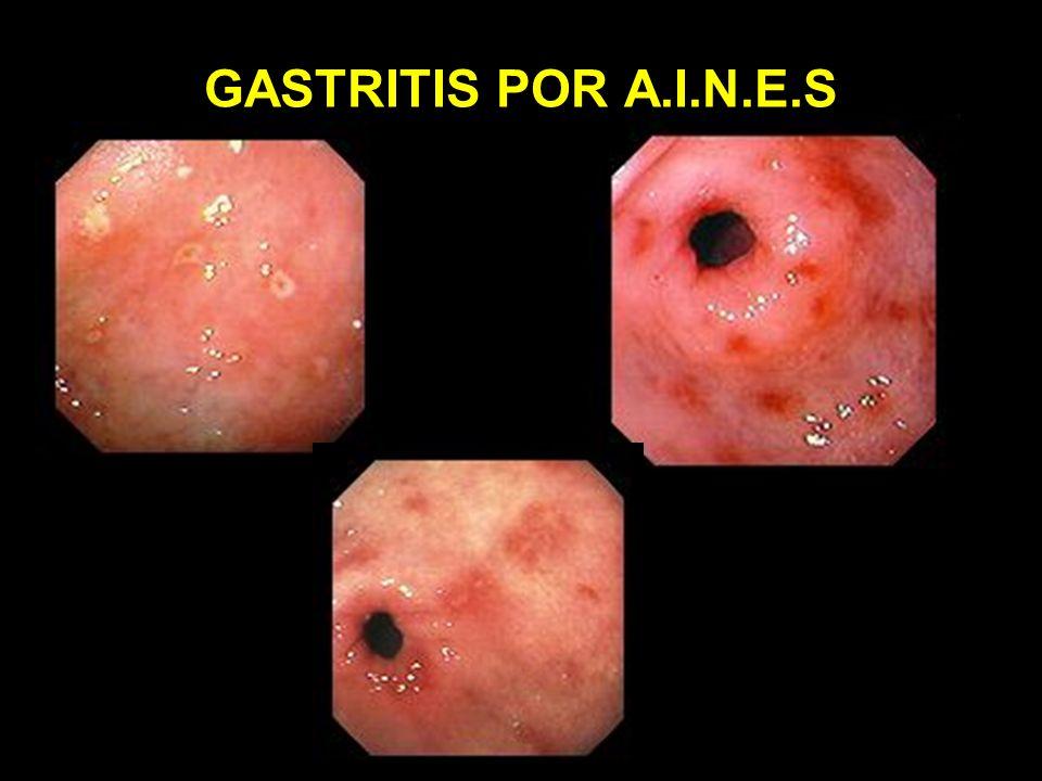 GASTRITIS POR A.I.N.E.S