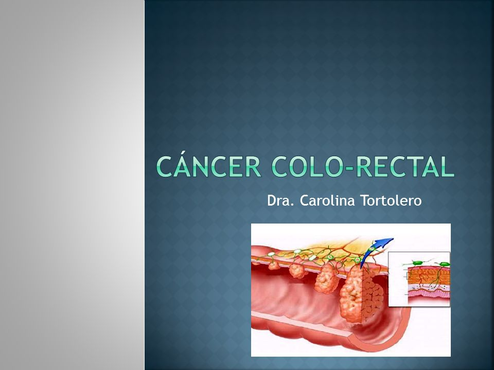 Tres o más familiares con cáncer colorectal, más todos de los siguientes: Un paciente afectado debería ser un familiar de primer grado de los otros dos; El cáncer colorectal debería comprometer al menos dos generaciones; Al menos un caso de cáncer colorectal debería ser diagnosticado antes de los 50 años de edad.
