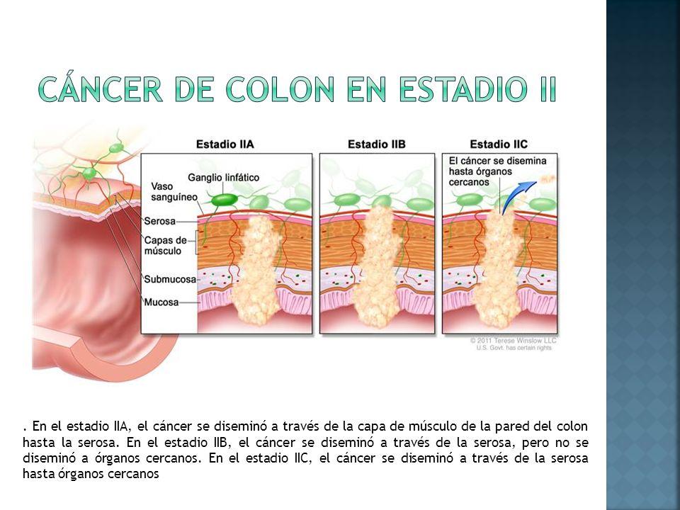 . En el estadio IIA, el cáncer se diseminó a través de la capa de músculo de la pared del colon hasta la serosa. En el estadio IIB, el cáncer se disem