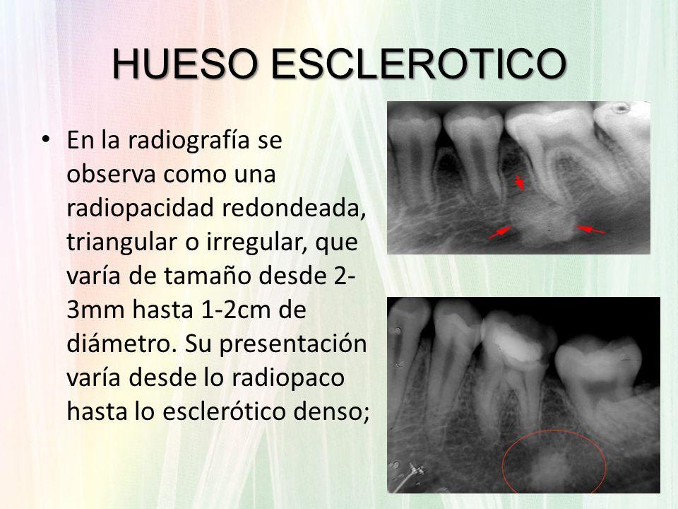 En la radiografía se observa como una radiopacidad redondeada, triangular o irregular, que varía de tamaño desde 2- 3mm hasta 1-2cm de diámetro. Su pr
