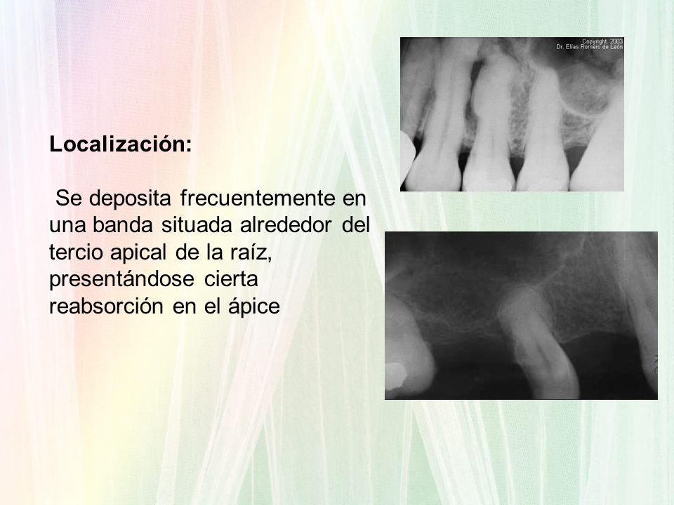 Localización: Se deposita frecuentemente en una banda situada alrededor del tercio apical de la raíz, presentándose cierta reabsorción en el ápice