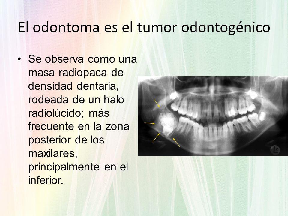 Se observa como una masa radiopaca de densidad dentaria, rodeada de un halo radiolúcido; más frecuente en la zona posterior de los maxilares, principa