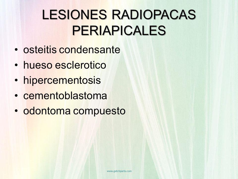 osteitis condensante hueso esclerotico hipercementosis cementoblastoma odontoma compuesto LESIONES RADIOPACAS PERIAPICALES