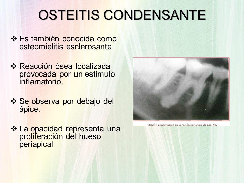 OSTEITIS CONDENSANTE Es también conocida como esteomielitis esclerosante Reacción ósea localizada provocada por un estimulo inflamatorio. Se observa p