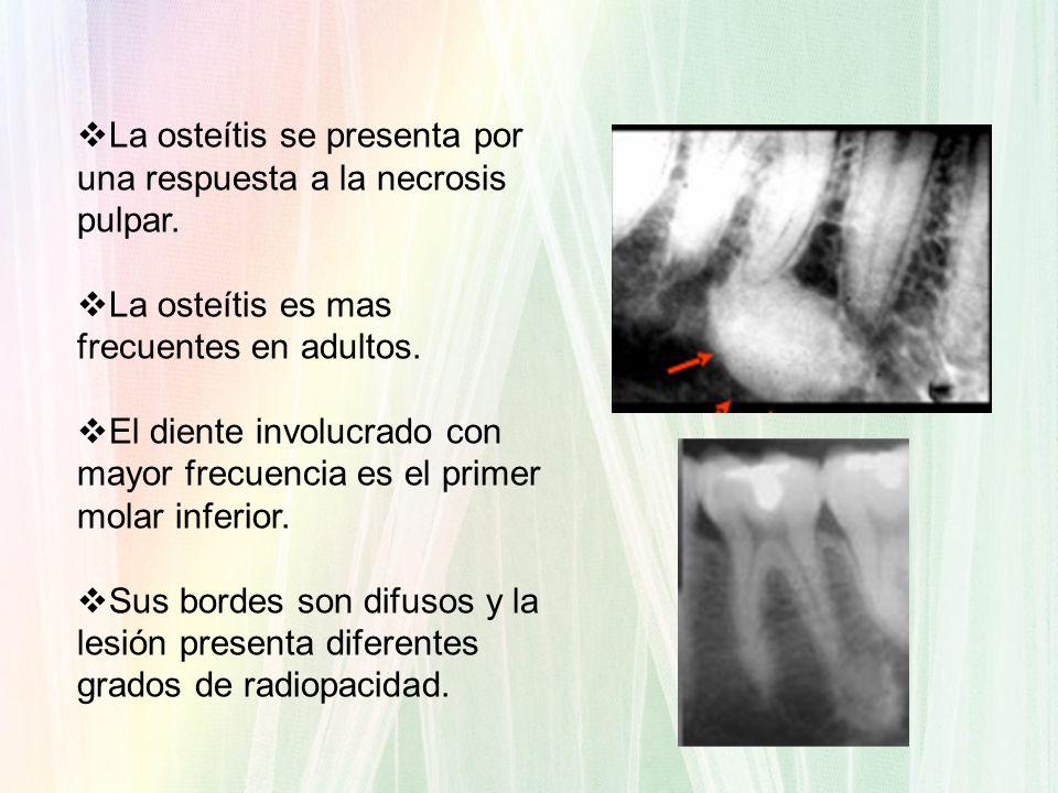 La osteítis se presenta por una respuesta a la necrosis pulpar. La osteítis es mas frecuentes en adultos. El diente involucrado con mayor frecuencia e