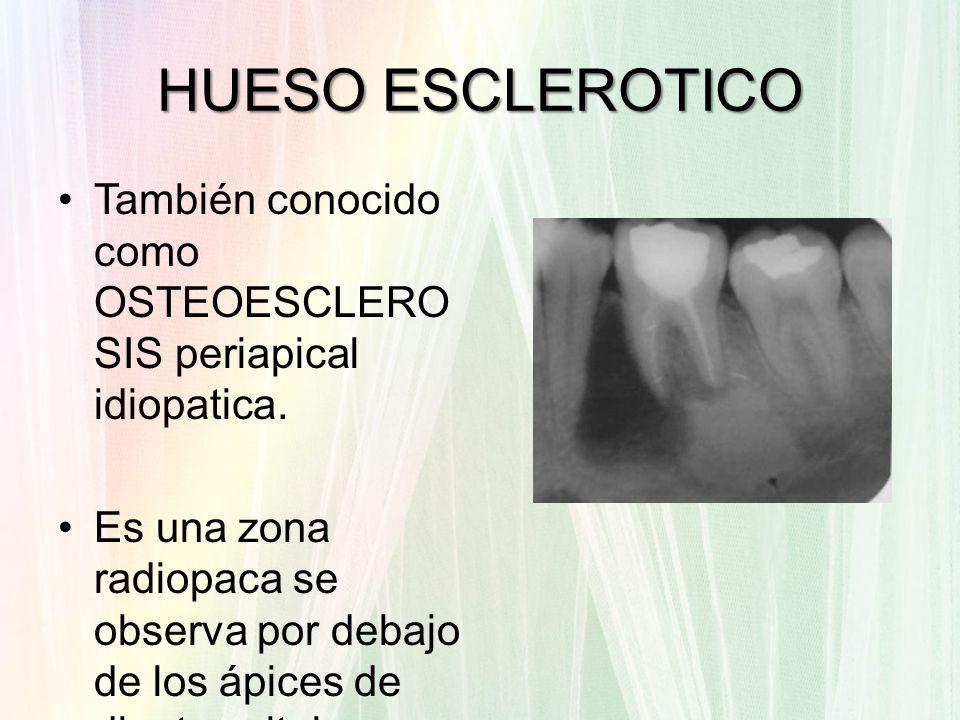 HUESO ESCLEROTICO También conocido como OSTEOESCLERO SIS periapical idiopatica. Es una zona radiopaca se observa por debajo de los ápices de dientes v