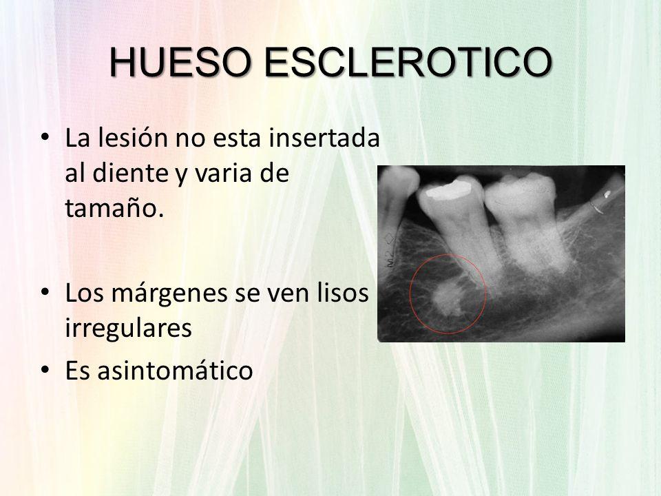 La lesión no esta insertada al diente y varia de tamaño. Los márgenes se ven lisos irregulares Es asintomático HUESO ESCLEROTICO