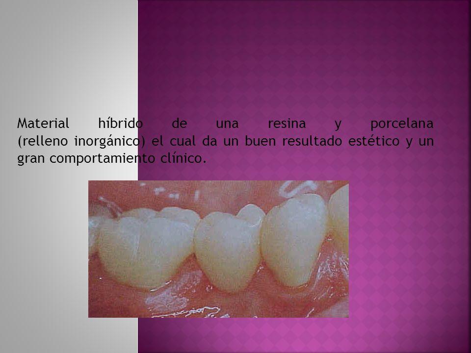 Material híbrido de una resina y porcelana (relleno inorgánico) el cual da un buen resultado estético y un gran comportamiento clínico.