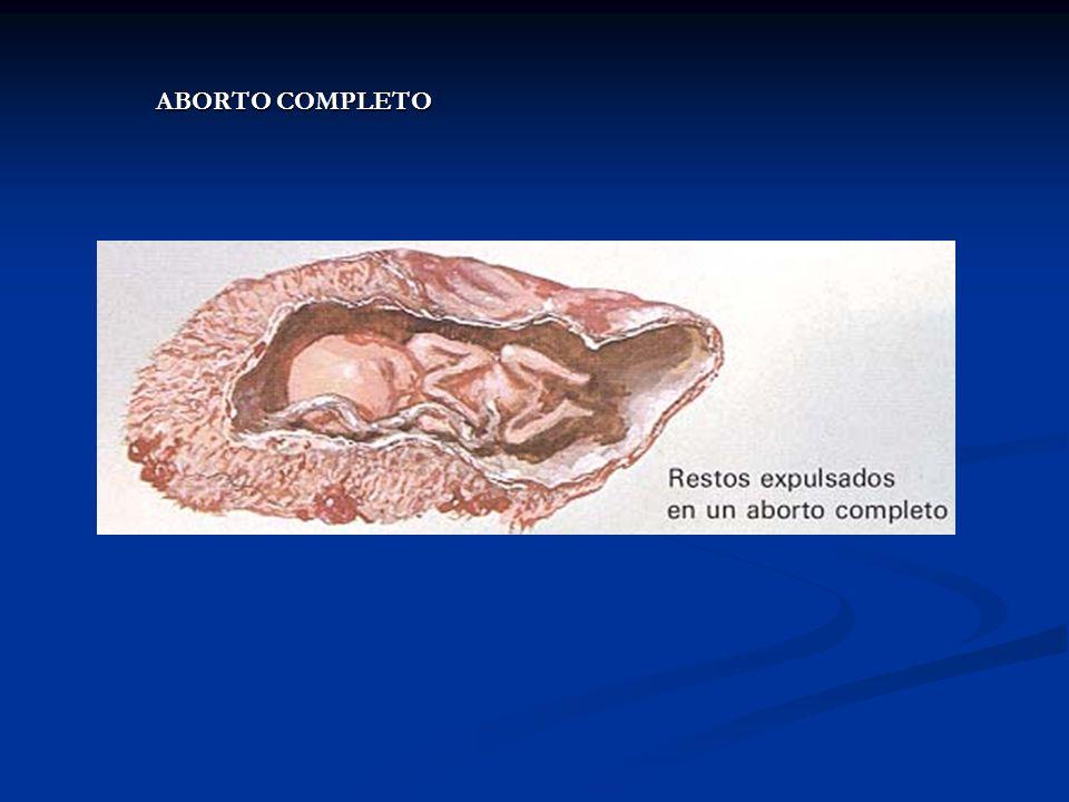 ABORTO COMPLETO