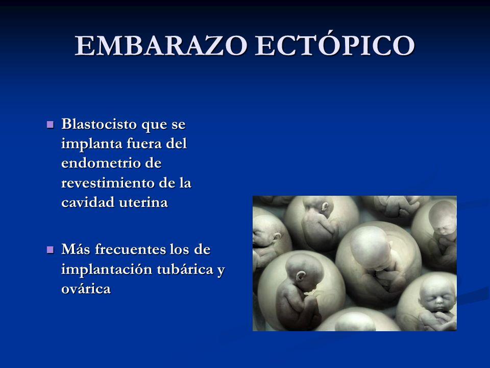EMBARAZO ECTÓPICO Blastocisto que se implanta fuera del endometrio de revestimiento de la cavidad uterina Blastocisto que se implanta fuera del endome