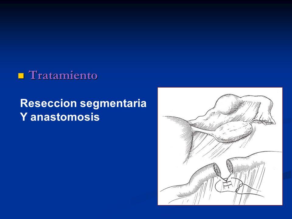 Tratamiento Tratamiento Reseccion segmentaria Y anastomosis