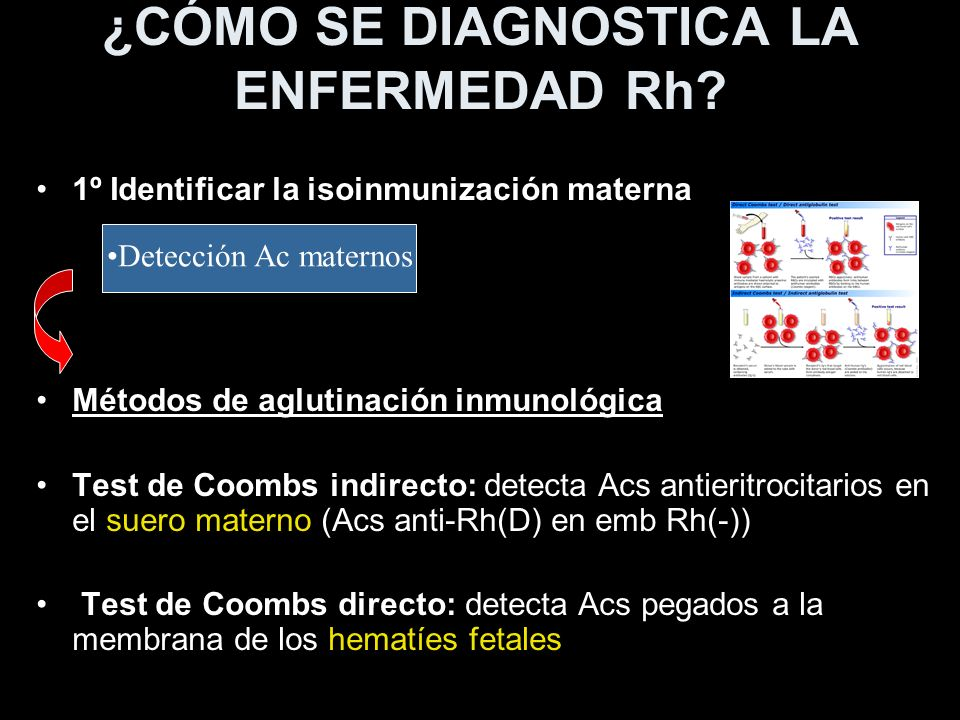 ¿CÓMO SE DIAGNOSTICA LA ENFERMEDAD Rh? 1º Identificar la isoinmunización materna Métodos de aglutinación inmunológica Test de Coombs indirecto: detect
