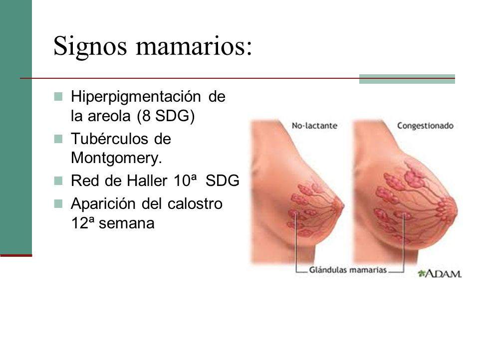 Signos mamarios: Hiperpigmentación de la areola (8 SDG) Tubérculos de Montgomery. Red de Haller 10ª SDG Aparición del calostro 12ª semana