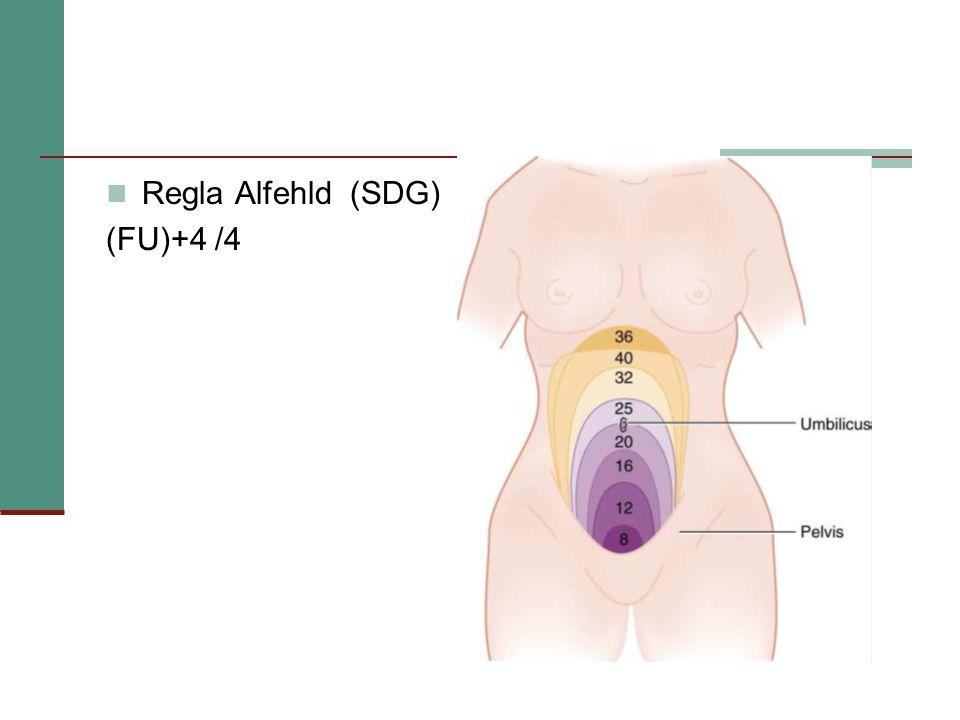 Regla Alfehld (SDG) (FU)+4 /4