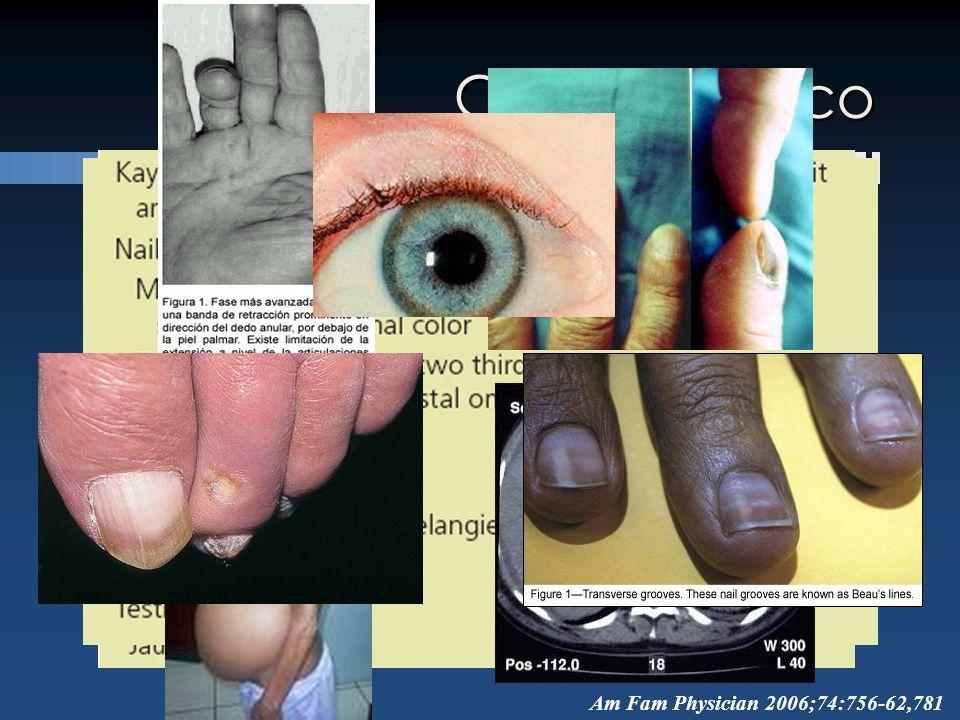 Cuadro clínico Am Fam Physician 2006;74:756-62,781