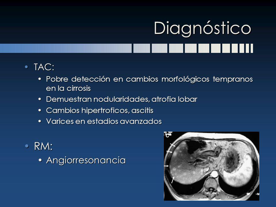 Diagnóstico TAC:TAC: Pobre detección en cambios morfológicos tempranos en la cirrosisPobre detección en cambios morfológicos tempranos en la cirrosis