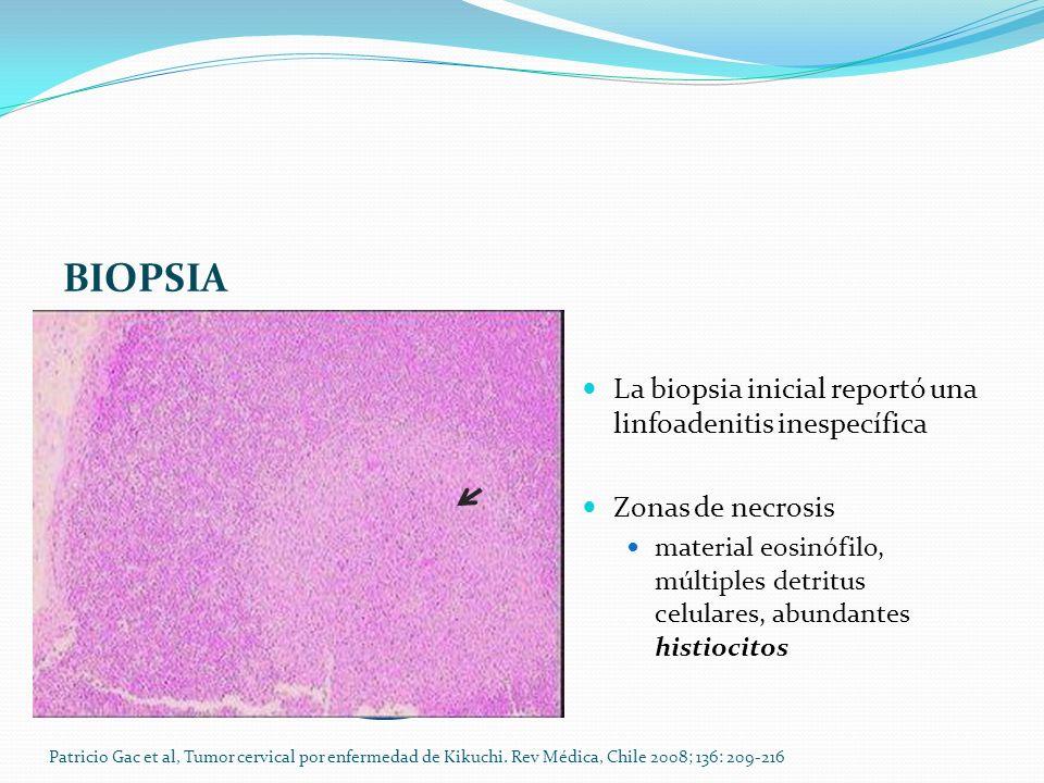 BIOPSIA La biopsia inicial reportó una linfoadenitis inespecífica Zonas de necrosis material eosinófilo, múltiples detritus celulares, abundantes hist