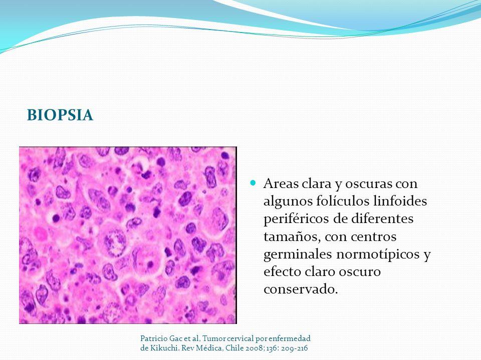 BIOPSIA Areas clara y oscuras con algunos folículos linfoides periféricos de diferentes tamaños, con centros germinales normotípicos y efecto claro os