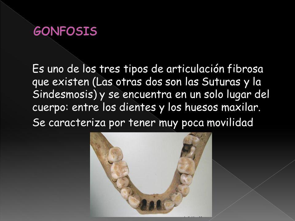 Es uno de los tres tipos de articulación fibrosa que existen (Las otras dos son las Suturas y la Sindesmosis) y se encuentra en un solo lugar del cuer