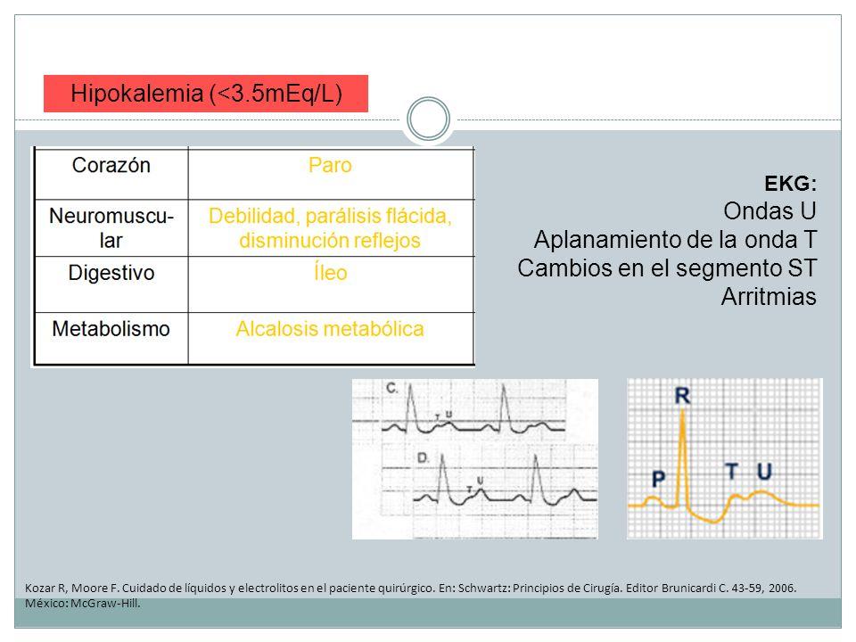 Hipokalemia (<3.5mEq/L) Kozar R, Moore F. Cuidado de líquidos y electrolitos en el paciente quirúrgico. En: Schwartz: Principios de Cirugía. Editor Br