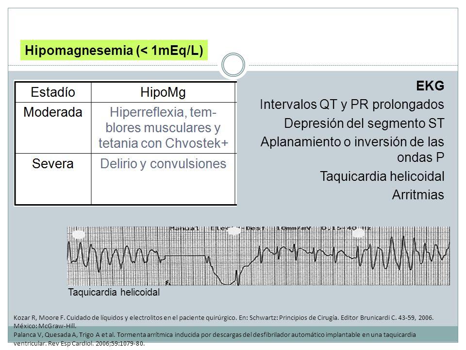 EKG Intervalos QT y PR prolongados Depresión del segmento ST Aplanamiento o inversión de las ondas P Taquicardia helicoidal Arritmias Hipomagnesemia (