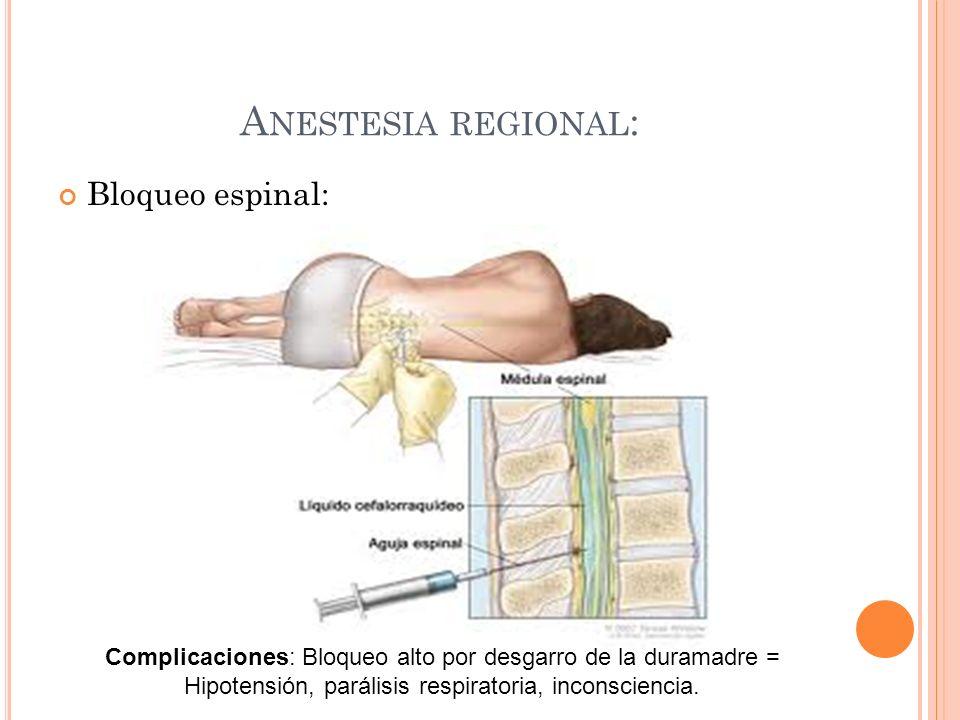 A NESTESIA REGIONAL : Bloqueo espinal: Complicaciones: Bloqueo alto por desgarro de la duramadre = Hipotensión, parálisis respiratoria, inconsciencia.