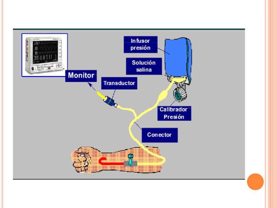 C UIDADOS CARDIOVASCULARES Vigilancia electrocardiografica: 3 electrodos para monitorización: Brazo Izquierdo Brazo Derecho Pierna Izquierda