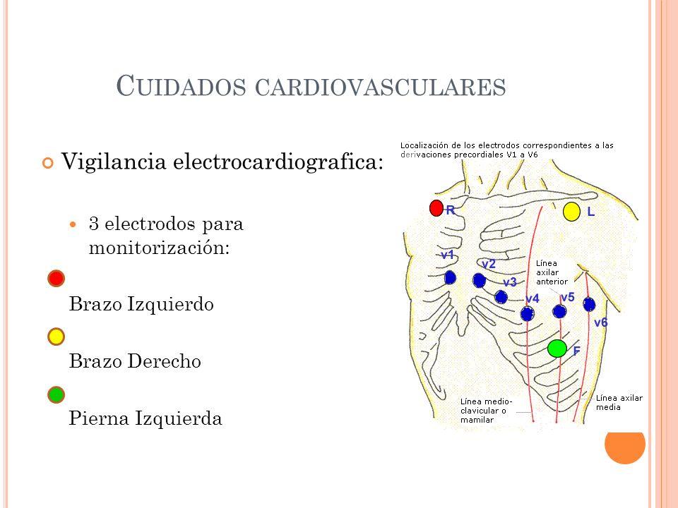 C UIDADOS CARDIOVASCULARES Colocación de Cateter venoso central: Técnica de Seldinger Antecubital Femoral Yugular (interna derecha-menos riesgos).