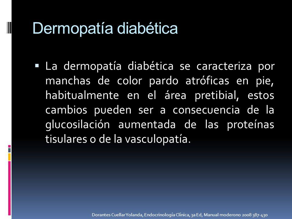 Dermopatía diabética La dermopatía diabética se caracteriza por manchas de color pardo atróficas en pie, habitualmente en el área pretibial, estos cam