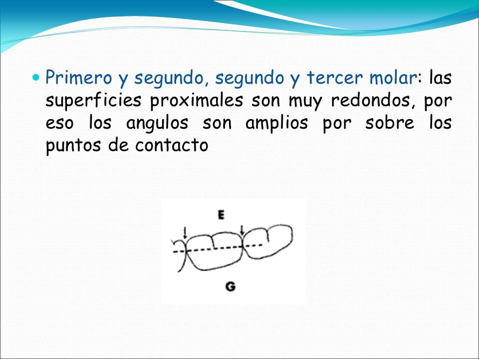 Primero y segundo, segundo y tercer molar: las superficies proximales son muy redondos, por eso los angulos son amplios por sobre los puntos de contac