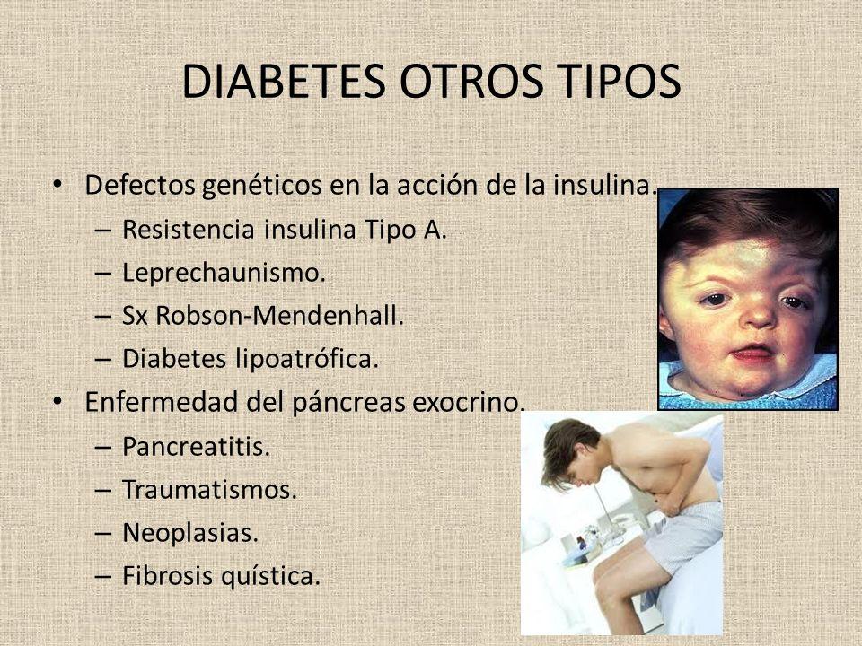 DIABETES OTROS TIPOS Defectos genéticos en la acción de la insulina. – Resistencia insulina Tipo A. – Leprechaunismo. – Sx Robson-Mendenhall. – Diabet