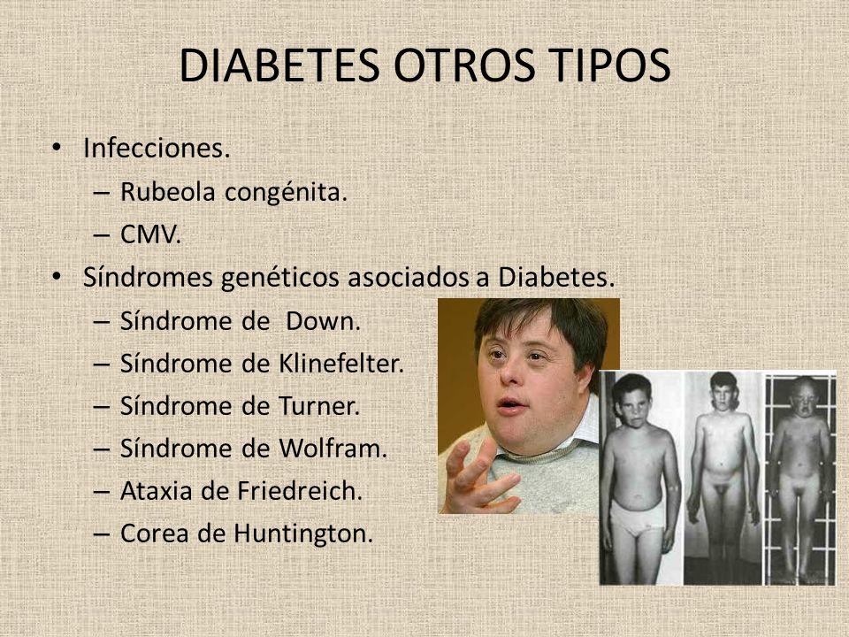 DIABETES OTROS TIPOS Infecciones. – Rubeola congénita. – CMV. Síndromes genéticos asociados a Diabetes. – Síndrome de Down. – Síndrome de Klinefelter.