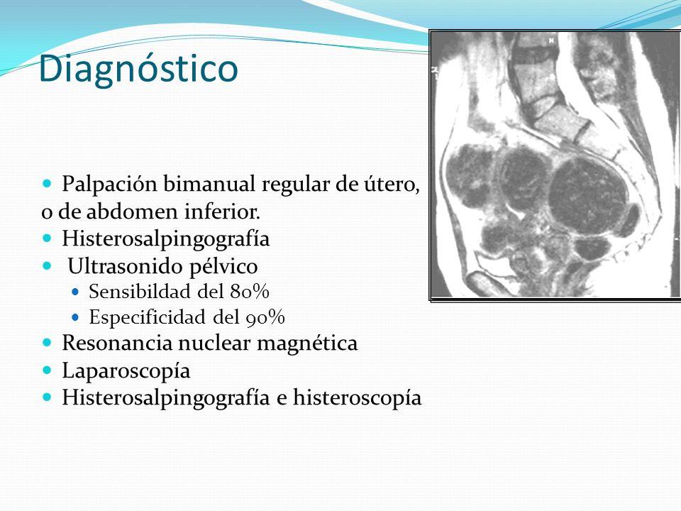 Diagnóstico Palpación bimanual regular de útero, o de abdomen inferior. Histerosalpingografía Ultrasonido pélvico Sensibildad del 80% Especificidad de