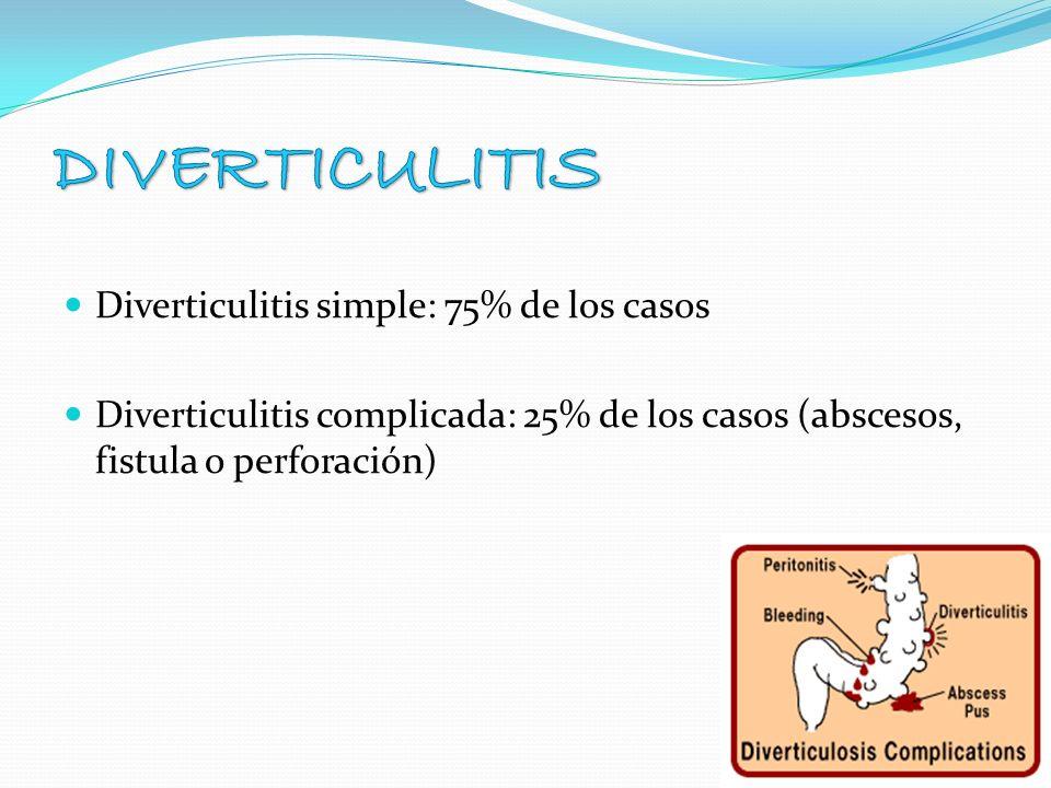 Diverticulitis simple: 75% de los casos Diverticulitis complicada: 25% de los casos (abscesos, fistula o perforación)