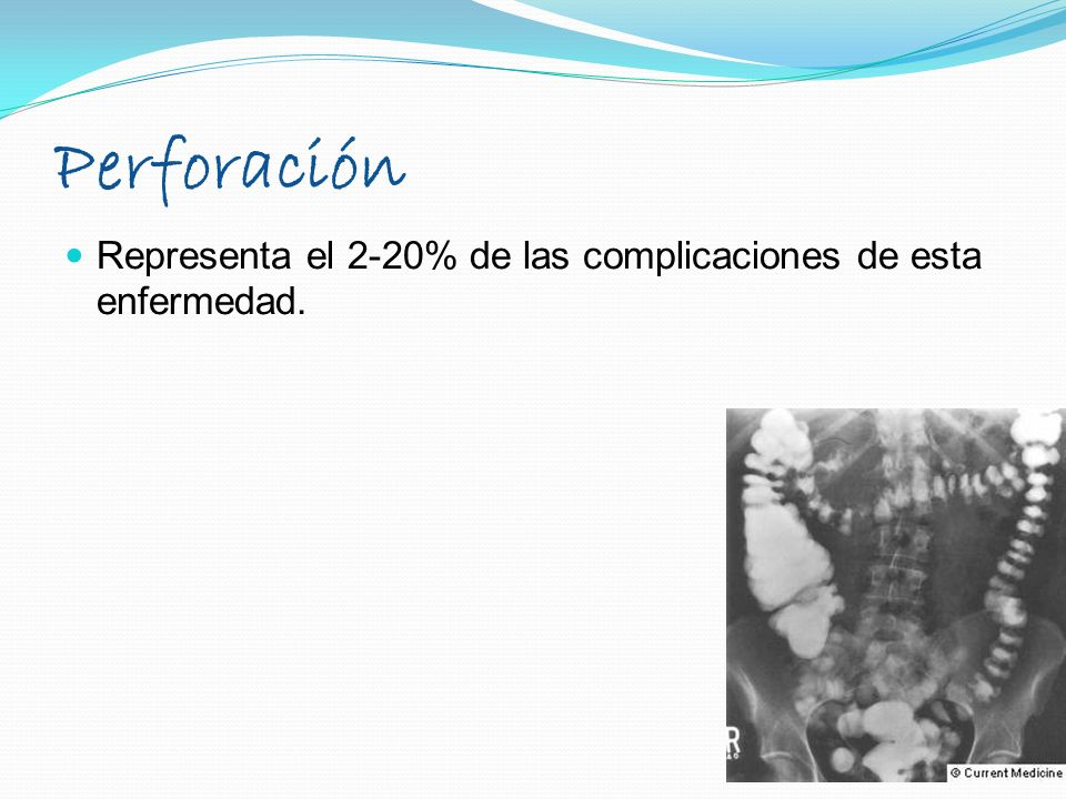 Representa el 2-20% de las complicaciones de esta enfermedad. Perforación