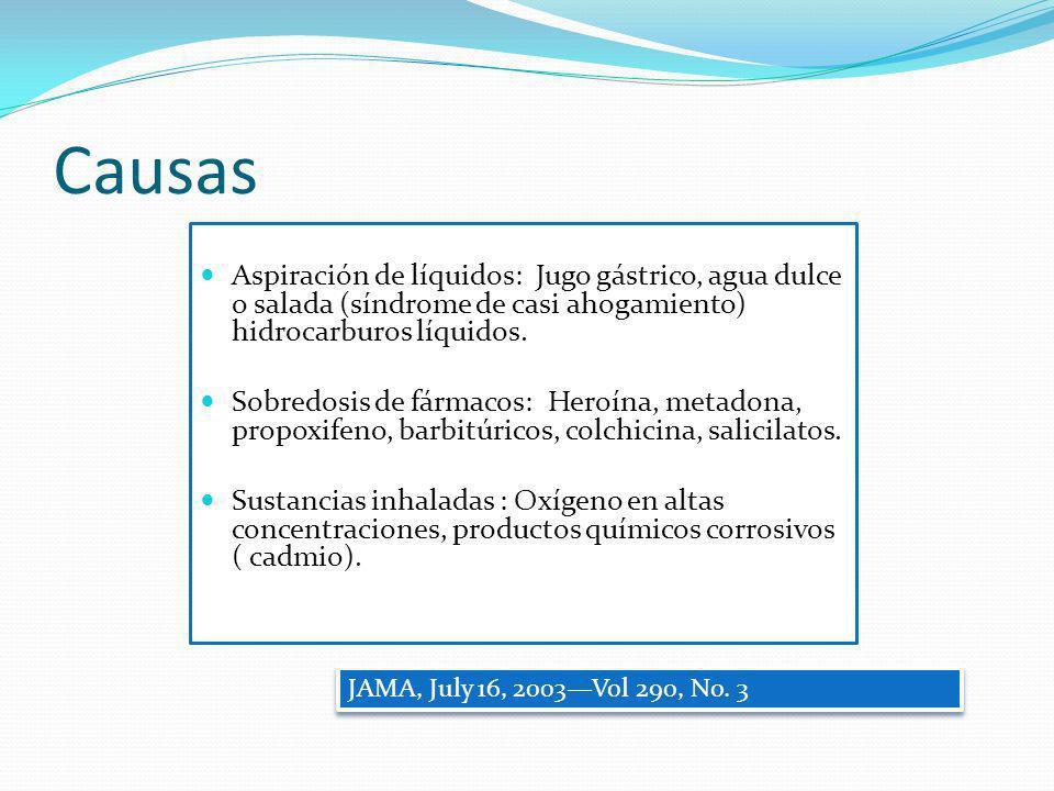 Causas Aspiración de líquidos: Jugo gástrico, agua dulce o salada (síndrome de casi ahogamiento) hidrocarburos líquidos. Sobredosis de fármacos: Heroí