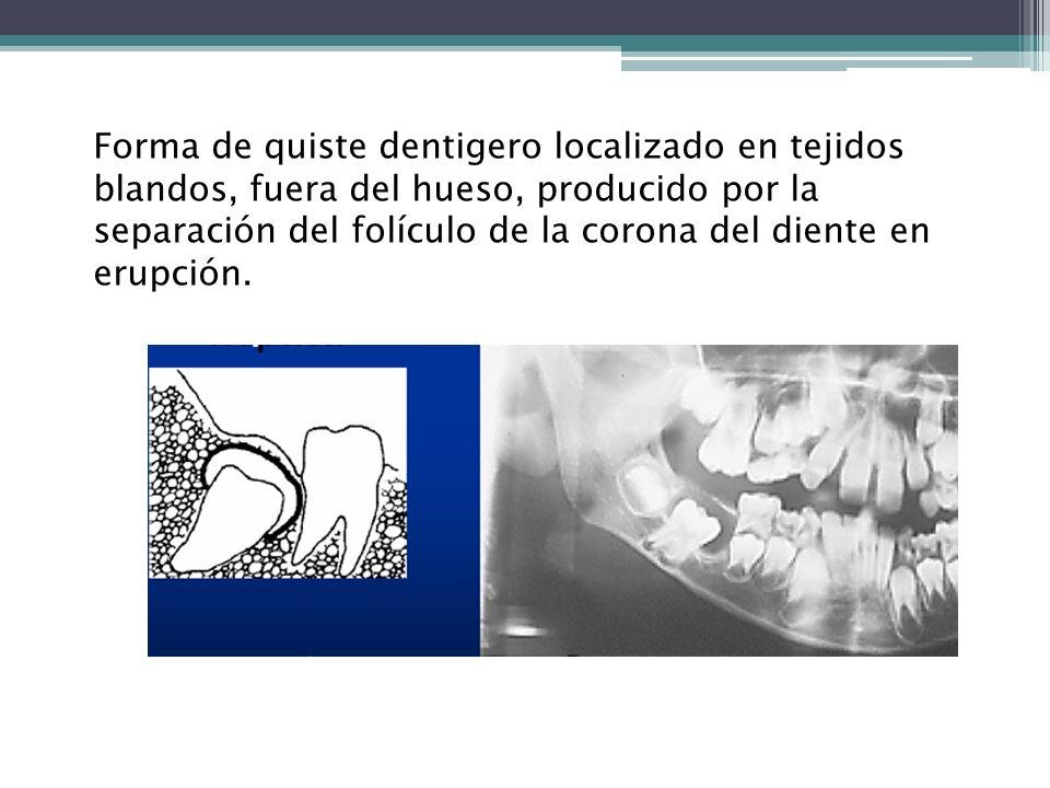 Forma de quiste dentigero localizado en tejidos blandos, fuera del hueso, producido por la separación del folículo de la corona del diente en erupción